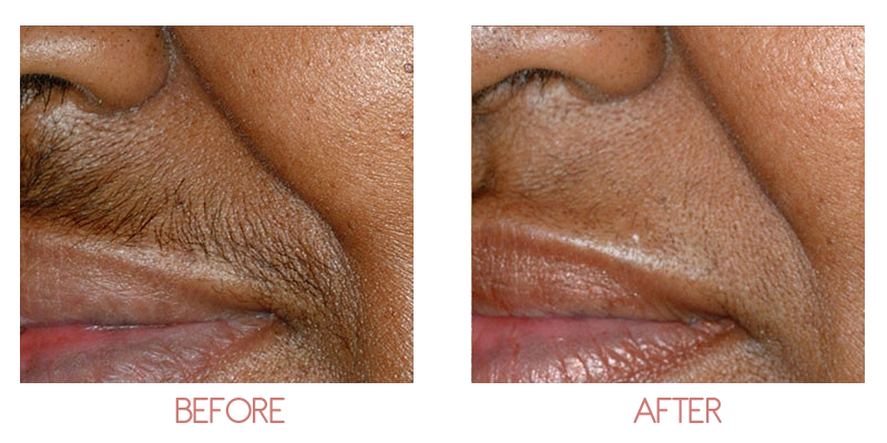 Hair Removal Ageless Medspa By Dr Sypien