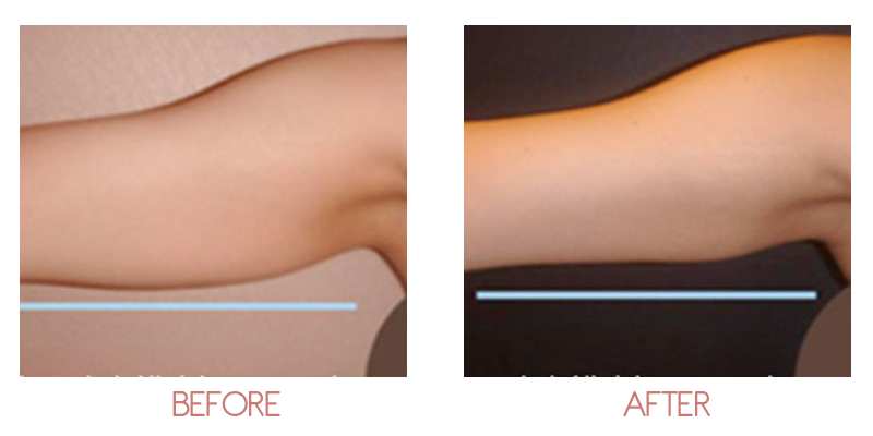 a7222acc39 Body Contouring | Ageless MedSpa by Dr Sypien
